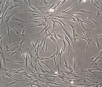Human Skin Fibroblasts